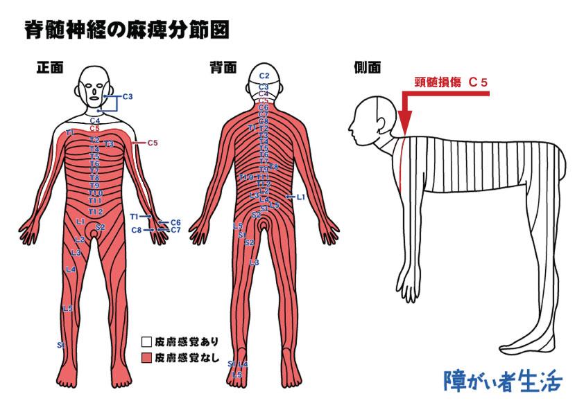 【福祉機器】頸髄損傷C5受傷者の暮らし2