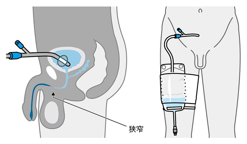 【福祉機器】頸髄損傷C6受傷者の暮らし3