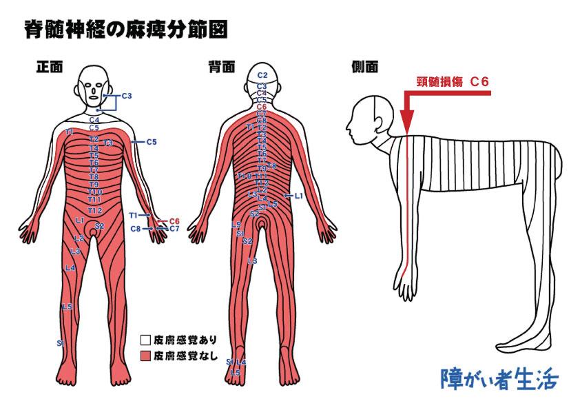 【福祉機器】頸髄損傷C6受傷者の暮らし2